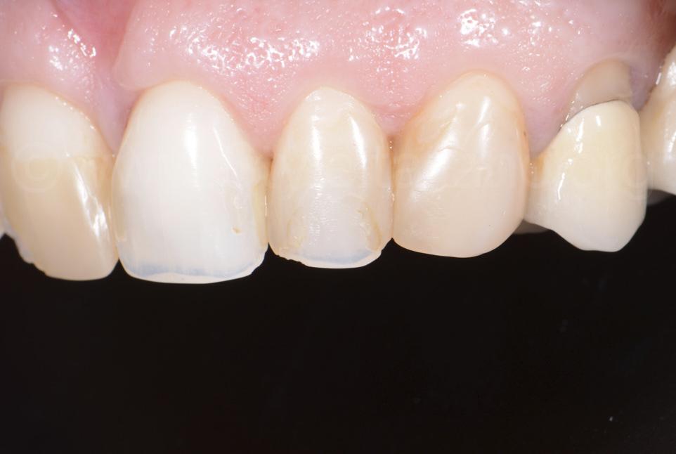old composite restorations on upper teeth