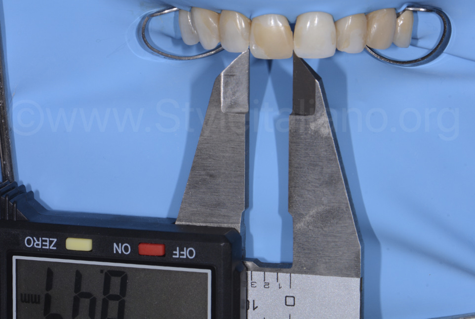 caliper for incisor measurement