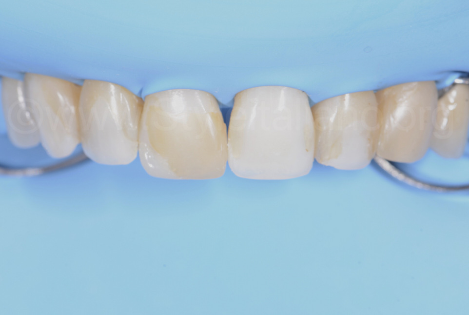 rubber dam isolation and teeth with old composite resin