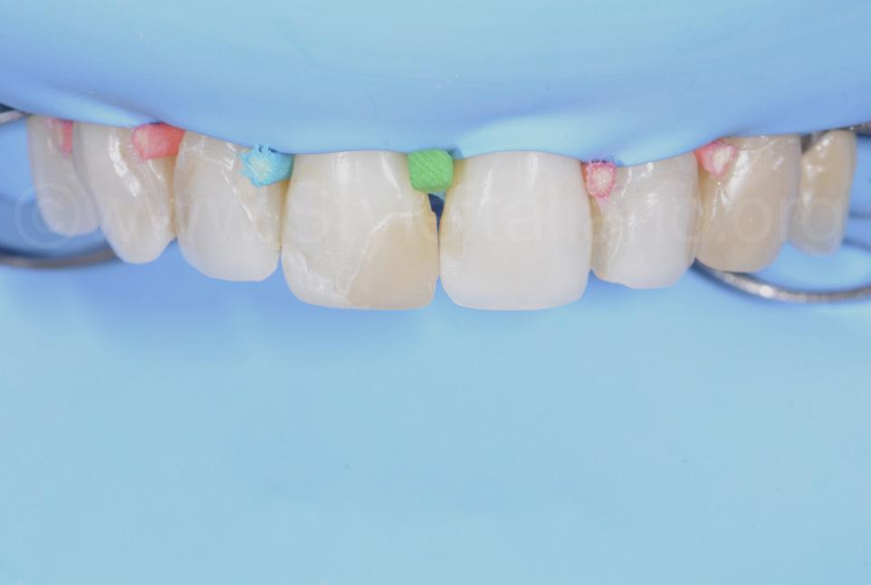 multicolor wooden wedges between teeth