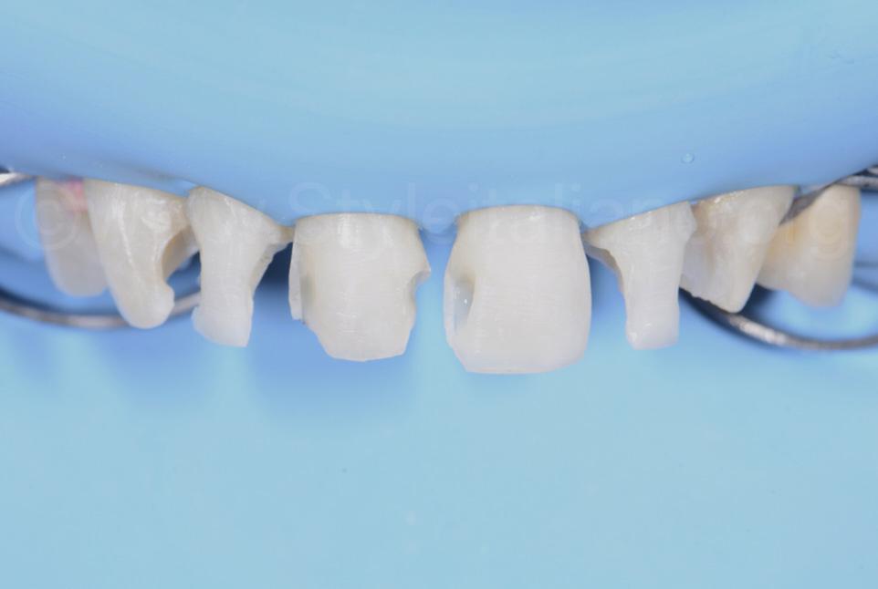 teeth with multiple cavities