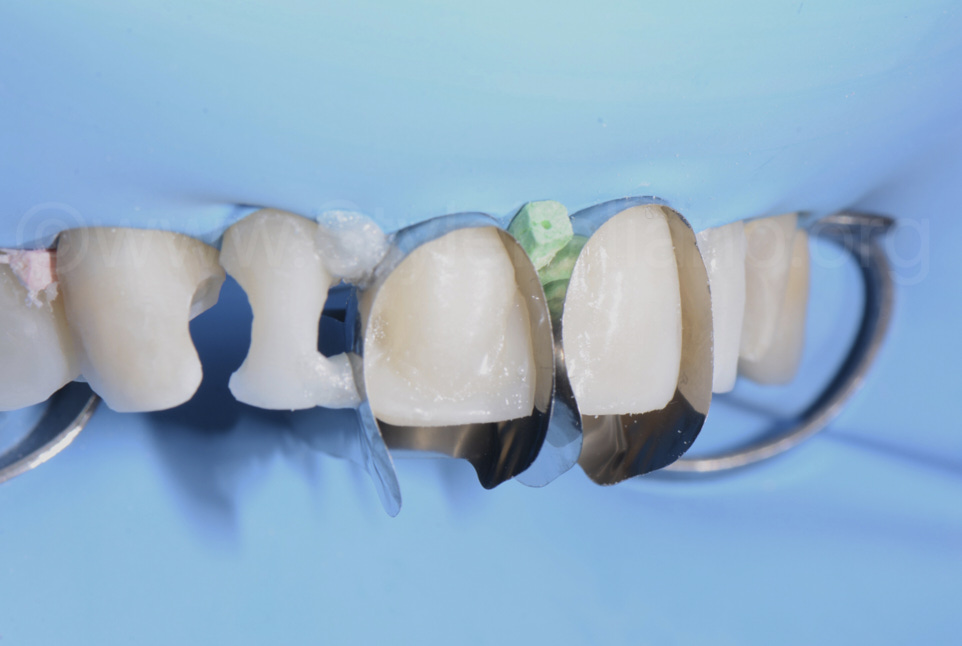 unica matrix for direct composite veneering with white dental beauty composite