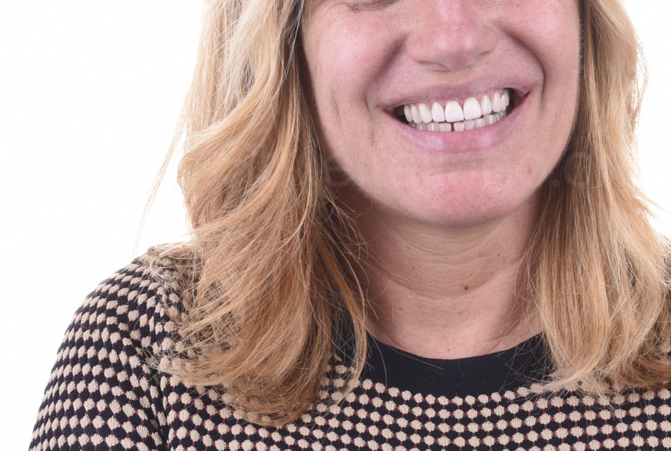 smile after direct composite coverage
