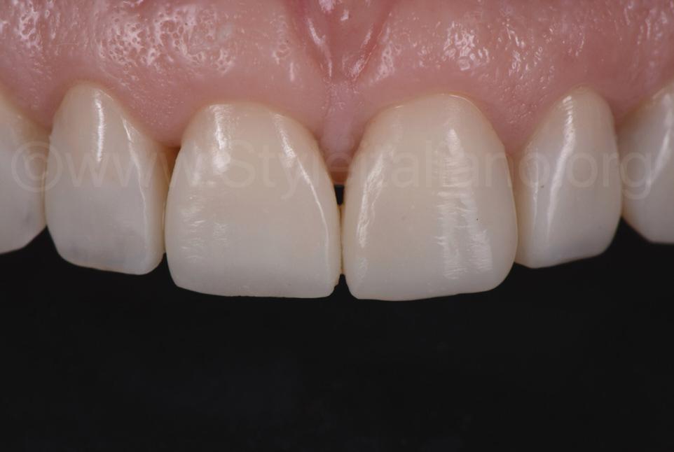 direct veneers on upper incisors