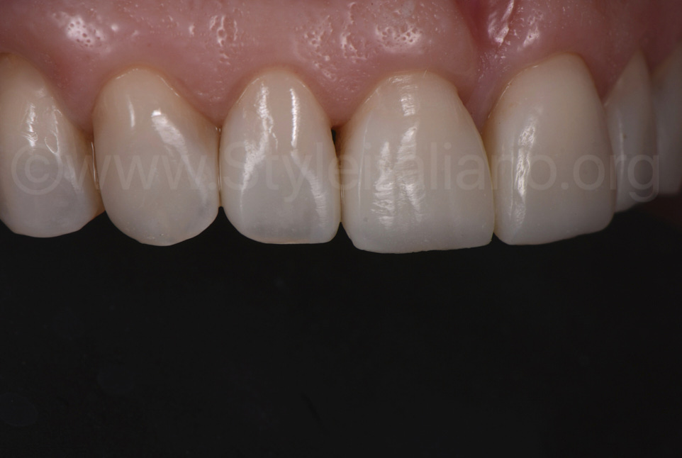 close up on direct composite veneers