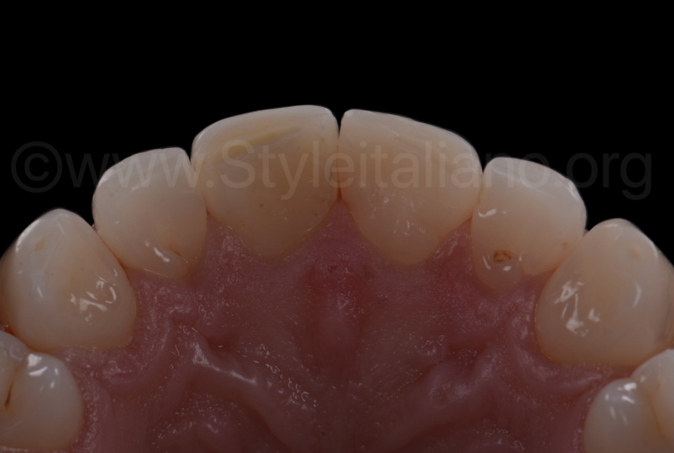 palatal view after direct veneering
