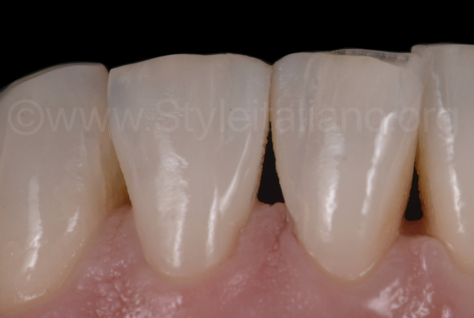 check up after direct diastema closure in the lower arch