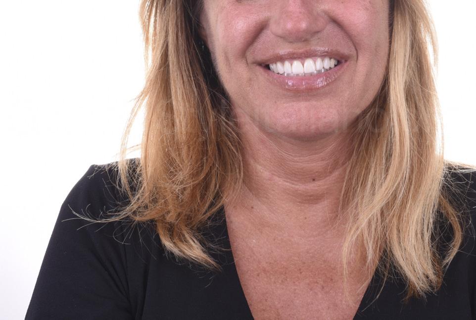 smile after direct veneer restoration