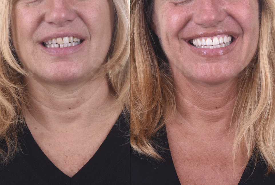 smile before and after direct composite veneering