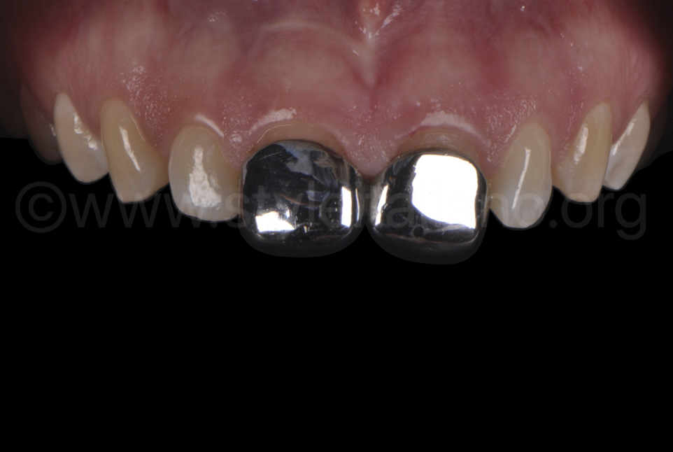 steel crowns on central incisors