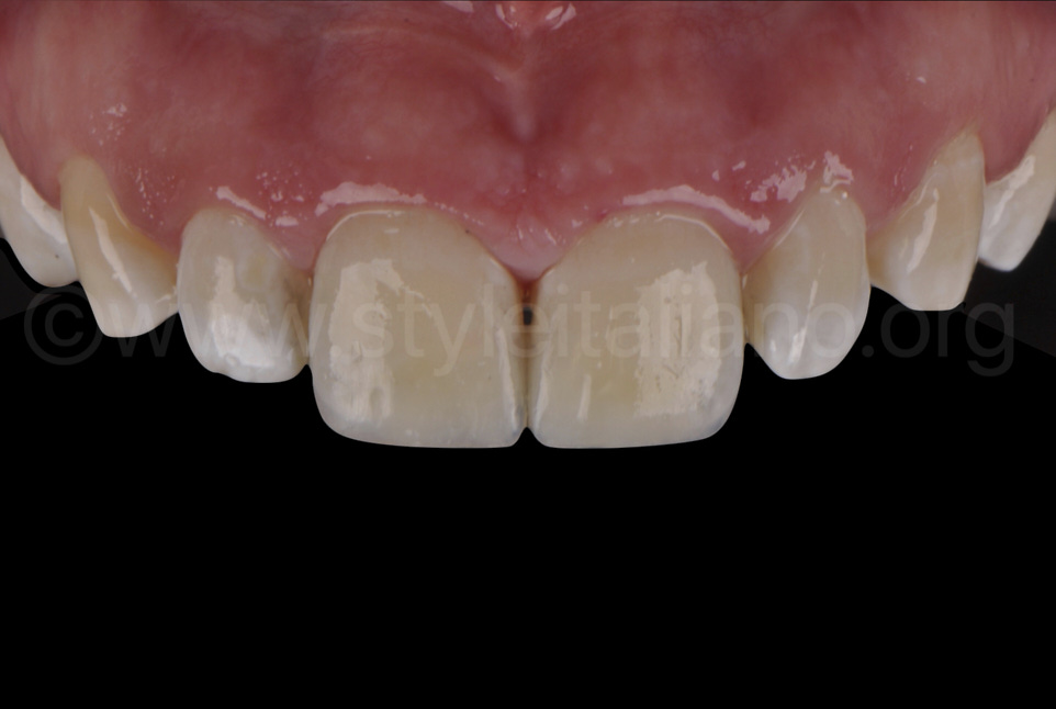 glossy natural composite restorations on central incisors