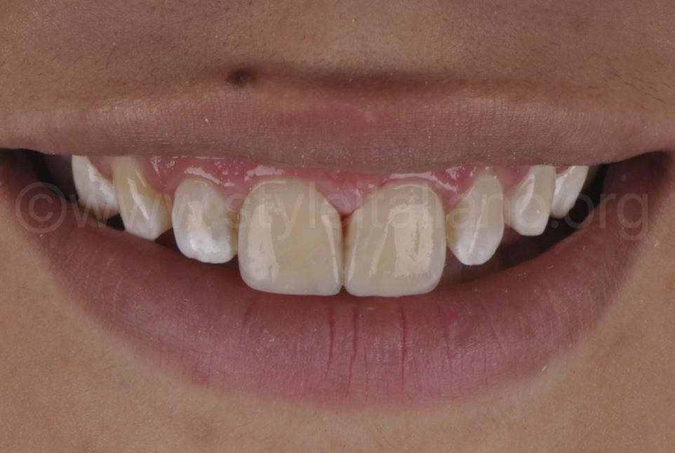 final smile of restored teeth