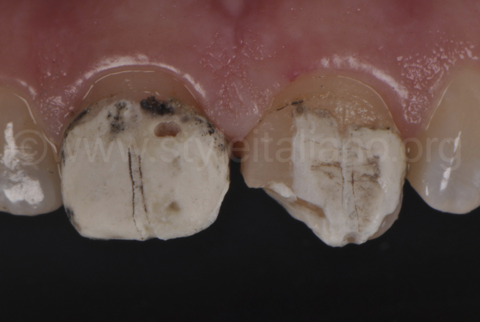 cement debris on central upper incisors
