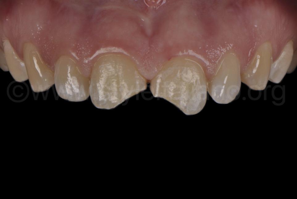 class 4 cavities on upper teeth