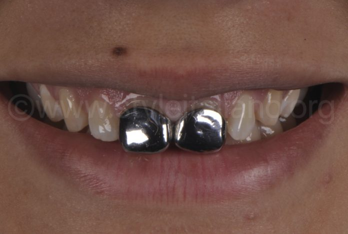 old steel crowns on incisors