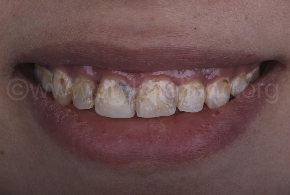 diffuse decay on upper teeth