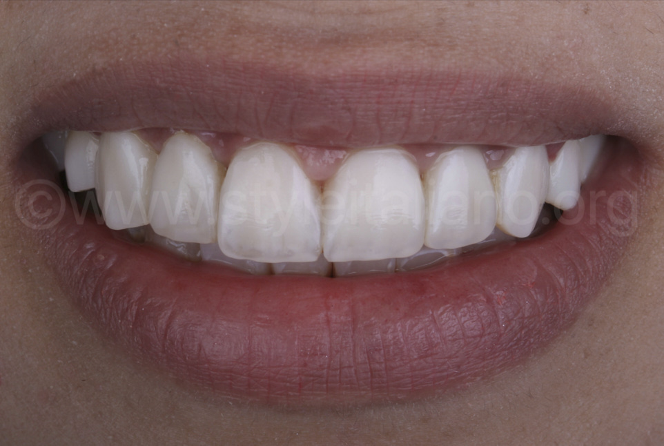 smile with direct veneers makeover