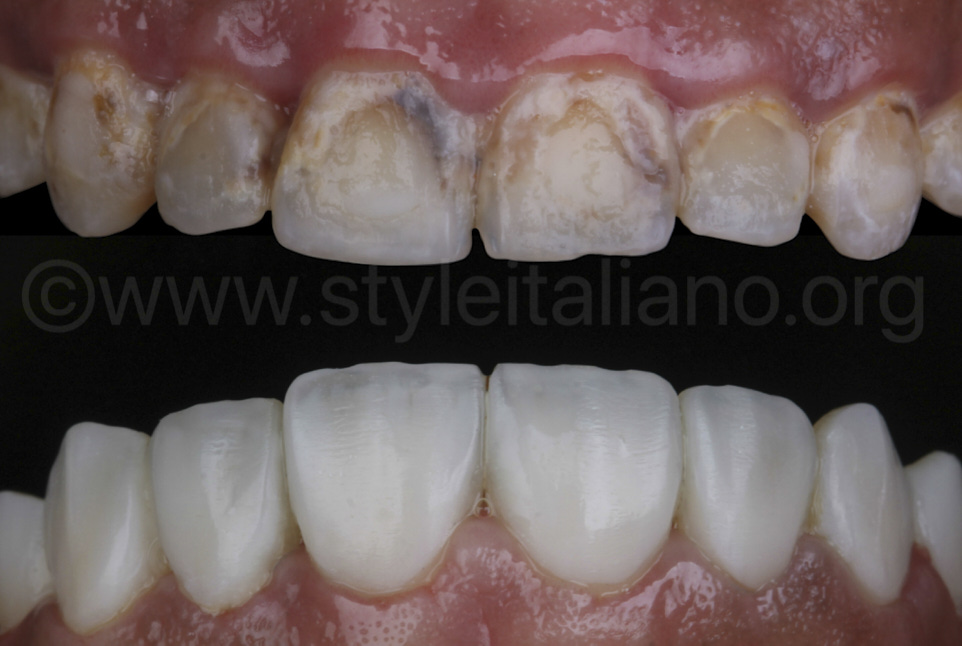 before and after smile makeover with direct composite veneers