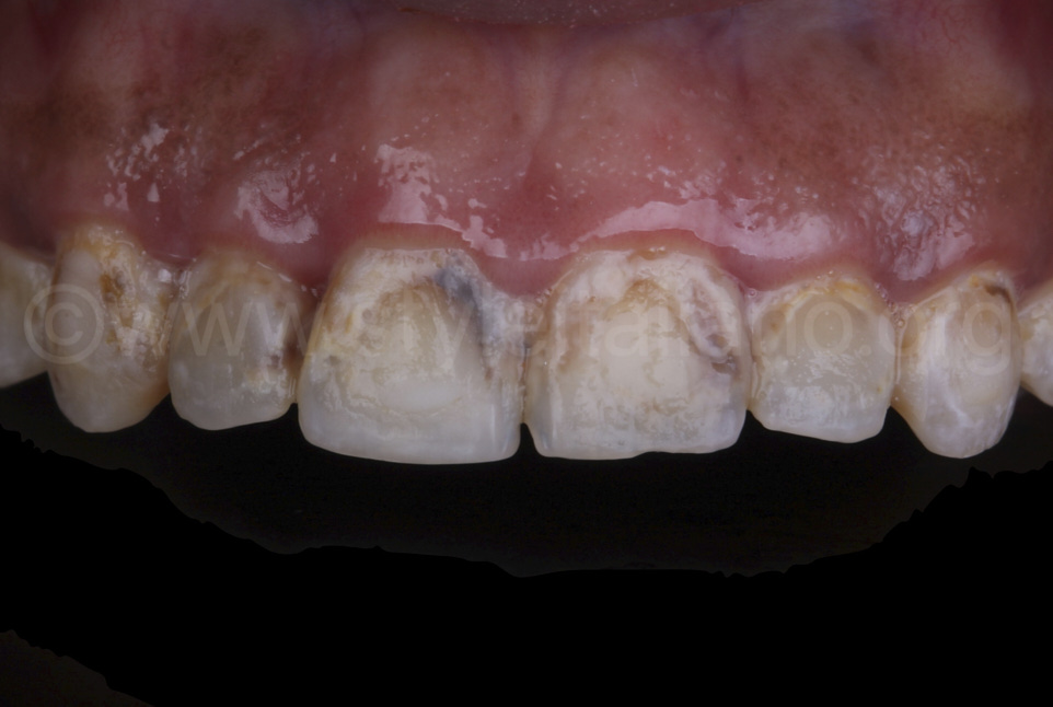dark spots and caries on upper teeth