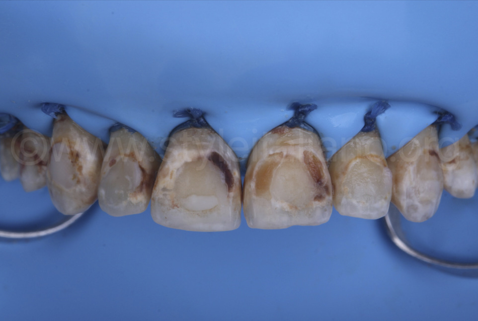 rubber dam isolation before caries cleaning