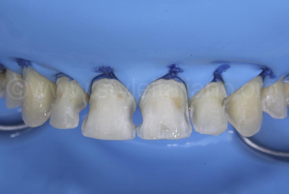 multiple cavitires under rubber dam isolation
