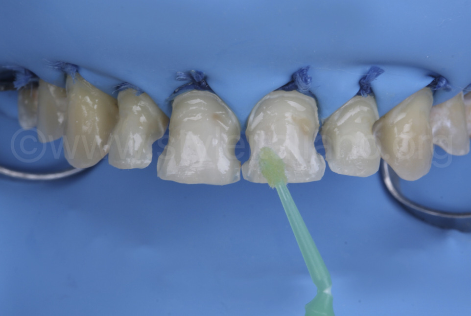 Unica anterior matrix for shaping of incisor composite filling