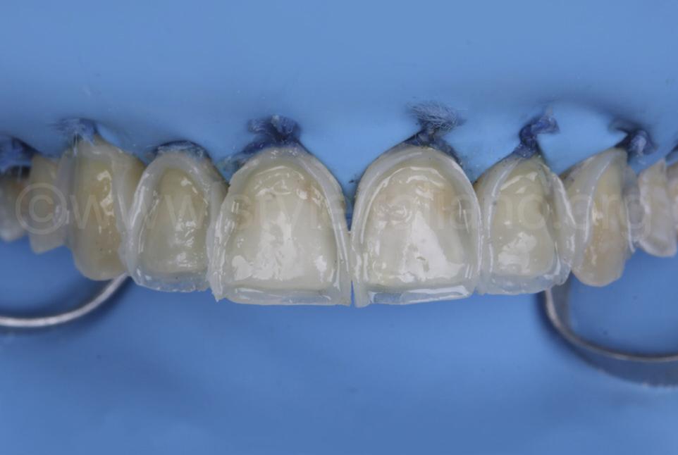 composite shells for direct veneering