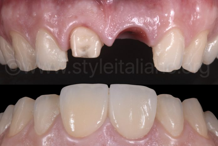 before and after implant placement and crowns