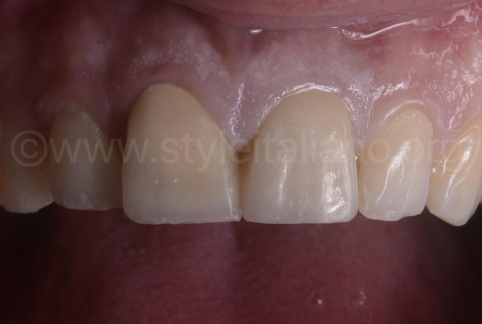 upper incisors