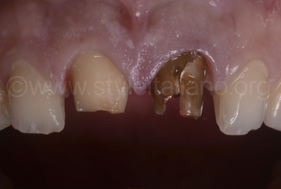cracked abutment of central incisor