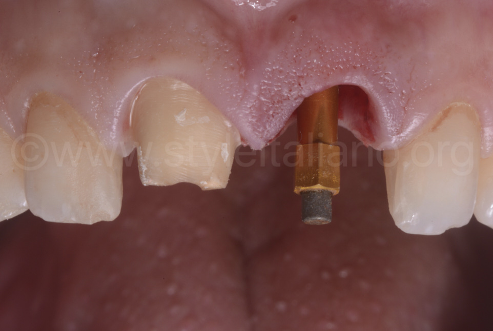 abutment and implant socket