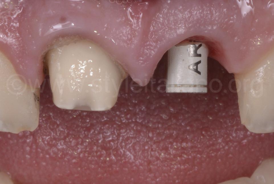 screwed scan body for implant digital impression