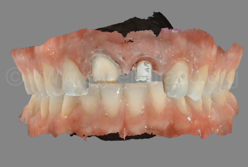digital impression of abutment and implant body
