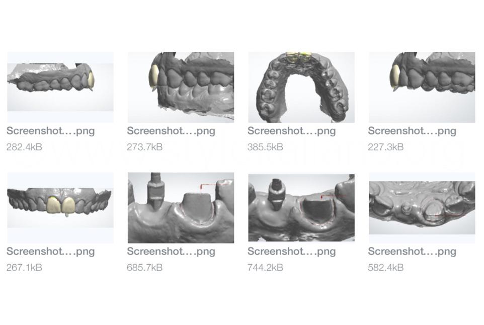 screenshots of laboratory dental digital design