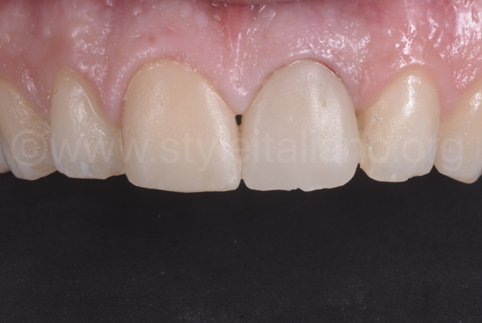 raw zirconia crown try in