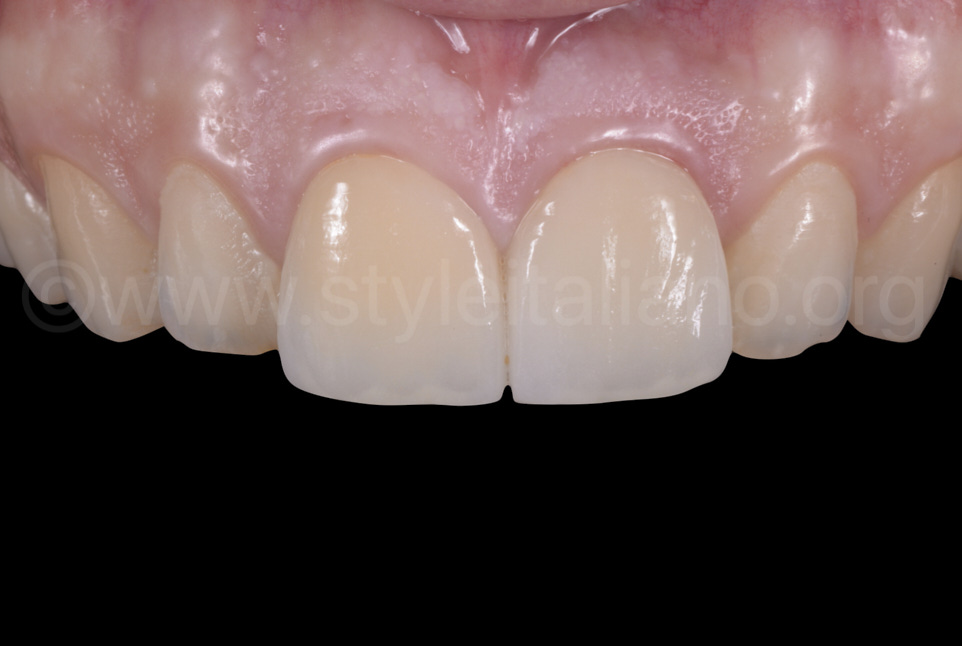 zirconia ceramic crowns on central incisors