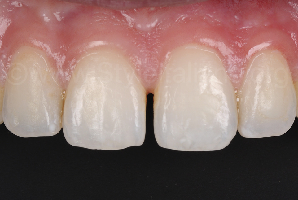 diastema between central incisors