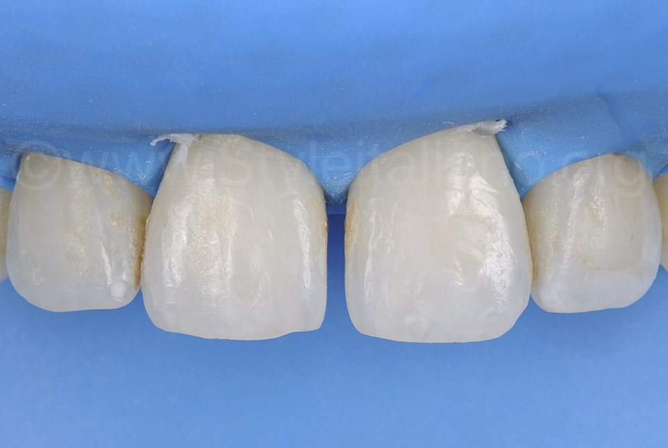 rubber dam isolation with diastema