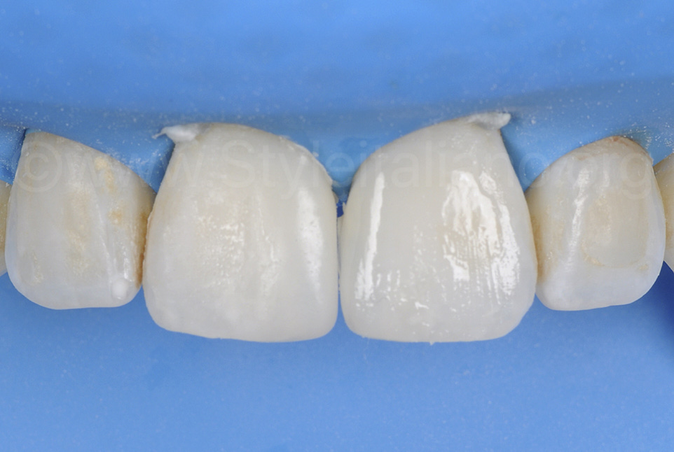 rough composite restorations on central incisors