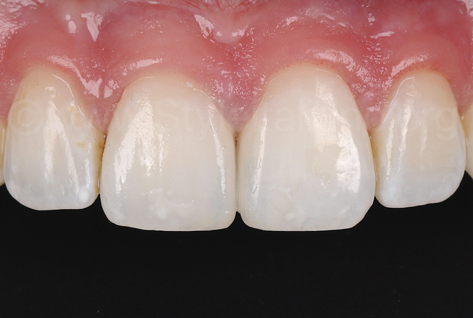 final picture of diastema closed with direct composite restorations