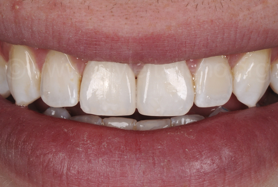 final smile after diastema restoration