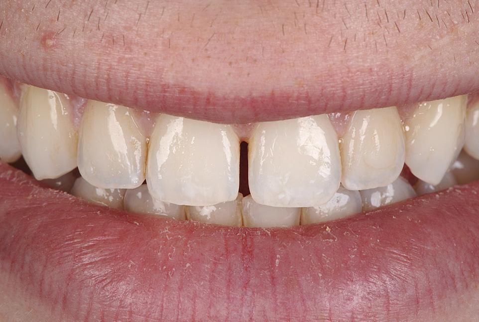 smile with central diastema