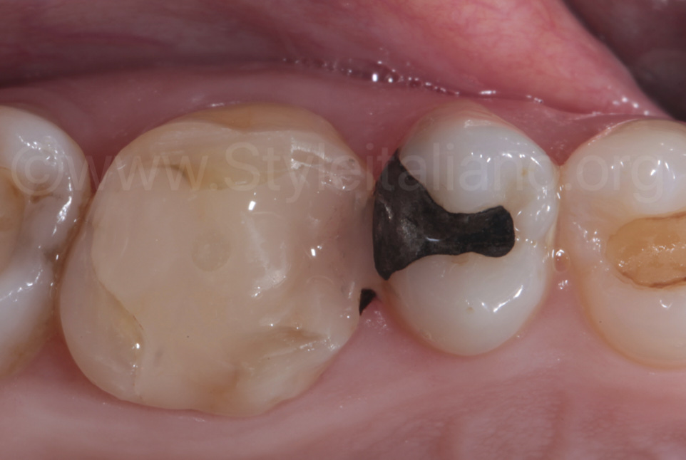 tooth after endodontic treatment
