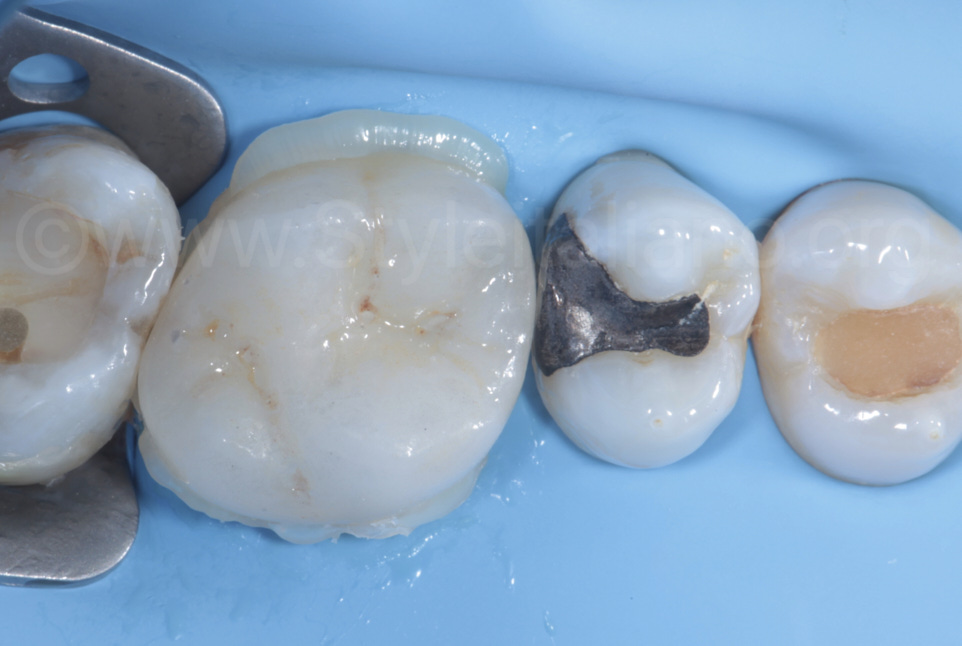 luting of overlay with composite excess