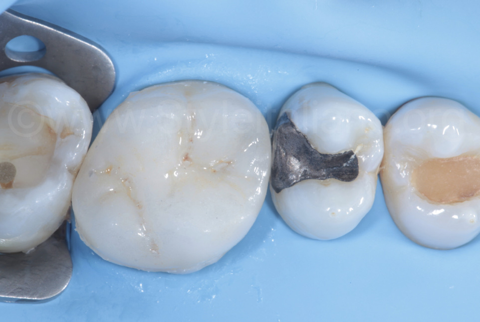 overlay after cementation with excess