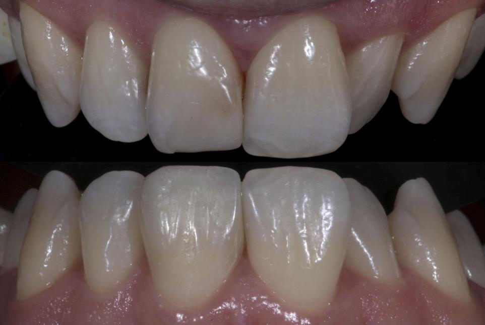 old composite restoration on central incisor