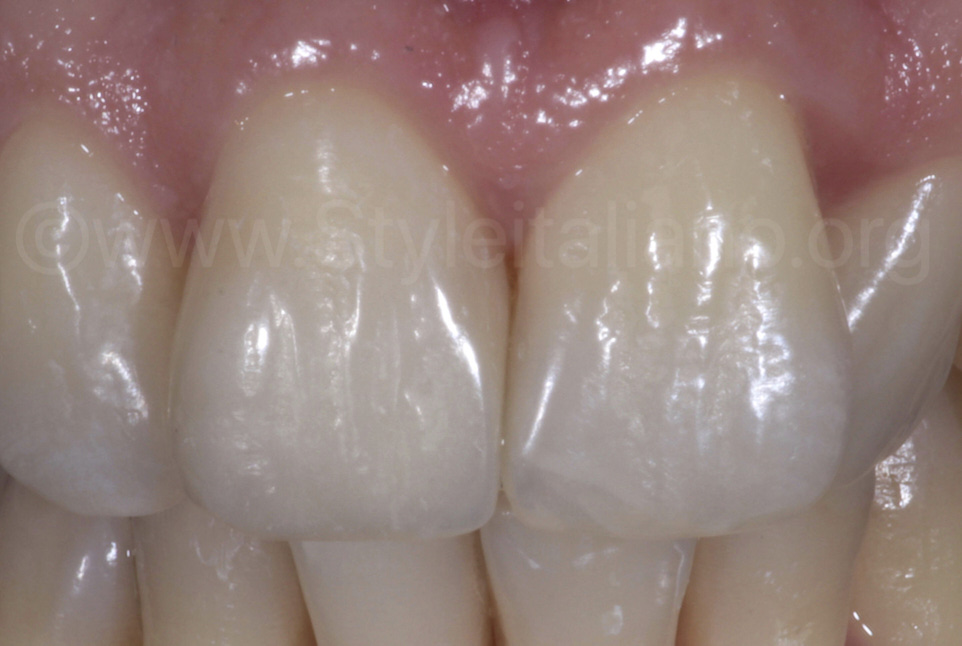 composite filling on central incisors