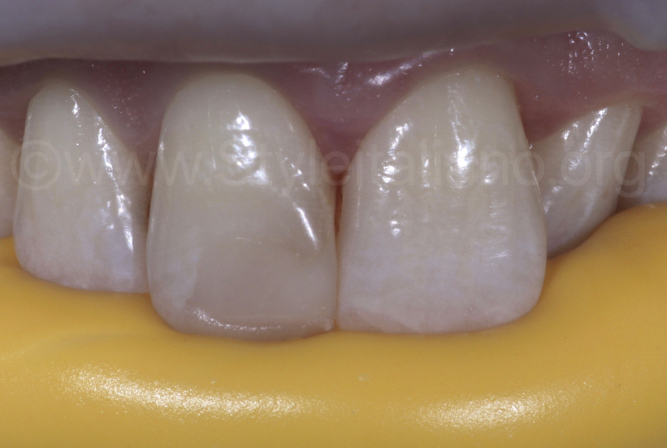 silicone index for incisor direct restoration
