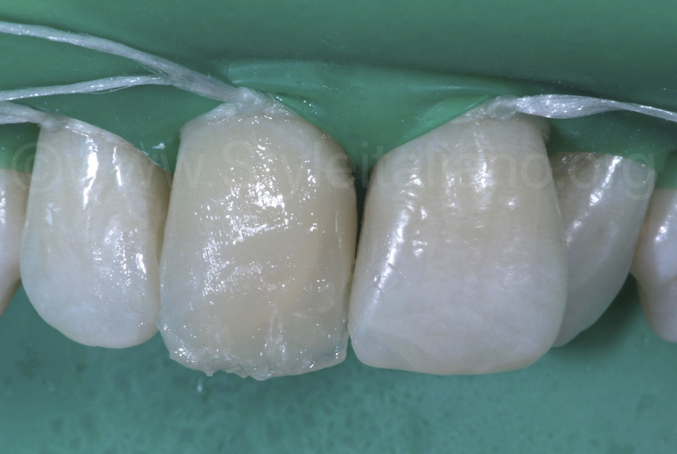 raw composite mass on central incisor