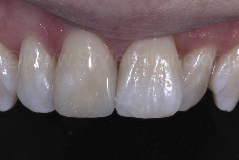 composite restoration before rehydration